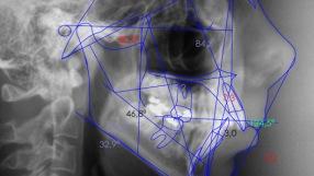 Ortodoncia Quirurgica