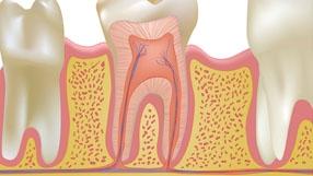 endodoncia pr