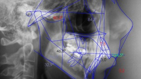 Ortodoncia quirúrgica